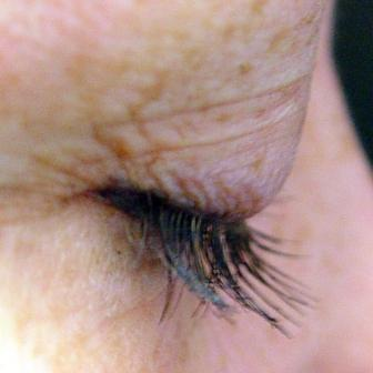 Dr. Lorrie Klein's eyelashes before and after Latisse