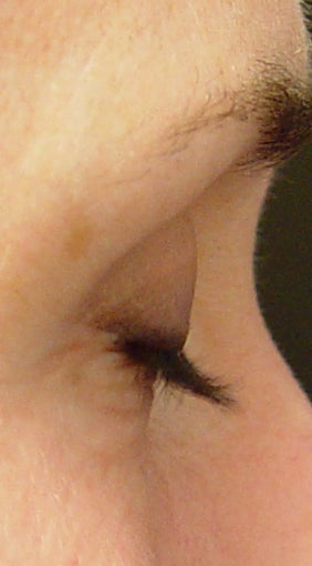 Lashes treated with Lumigan/Latisse