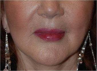 Lip augmentation with Restylane injections