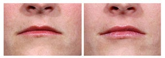 Restylane injection for lip augmentation