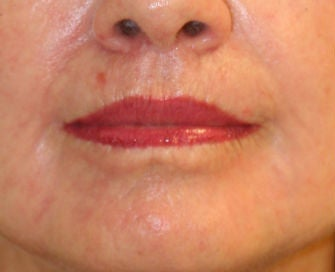 Lip lift, corner of lip lift, and laser treatment of wrinkles around lips