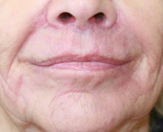 Lip lift, corner of lip lift, and filler around lips