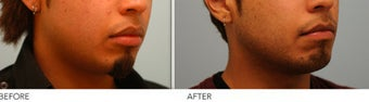 Upper and Lower Lip Reduction