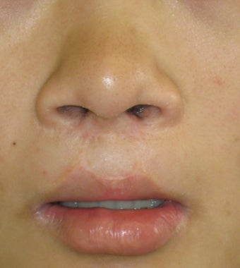 fati injection from abdomen to lip; dermabrasion to nostril scars