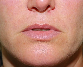 Lip lift, corner of lip lift, and filler in lips