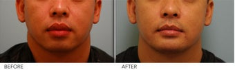 Lip Reduction for Correction of Silicone