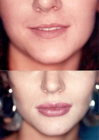 Lip Augmentatoin