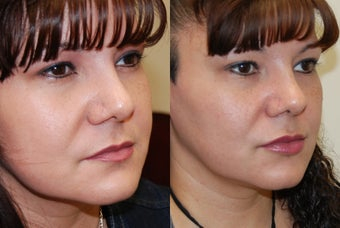 Lip Augmentation with Silikon-1000