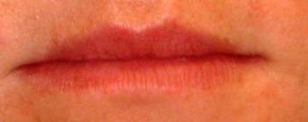 Facial Fillers- Lips