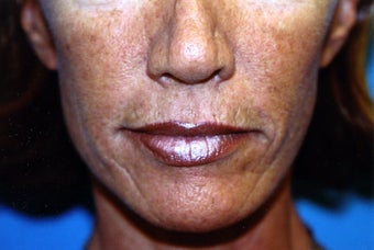 Upper and Lower Direct Lip Lift