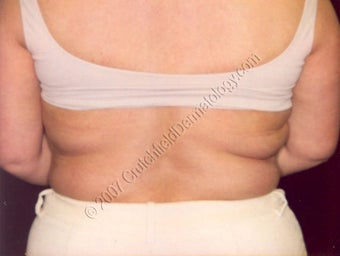 LipoDissolve injections to back fat