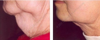 Lipodissolve before and after on chin