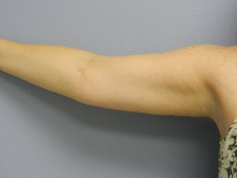 Before Laser Lipo / Arms