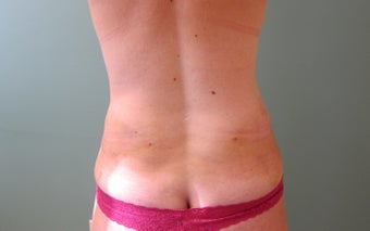 SMART Liposuction of Love Handles