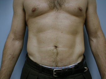 Male contouring liposuction