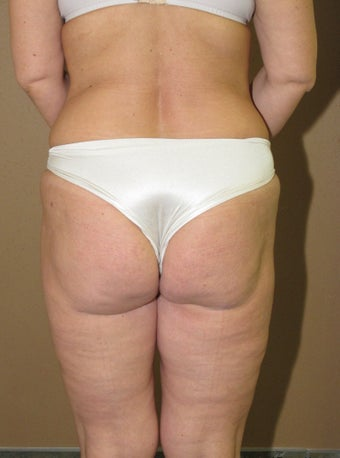 Ultrasonic liposuction thighs and fat transfer