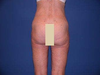 Thigh Liposculpture