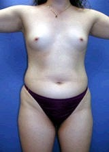 Liposculpture, Liposuction and Breast Augmentation