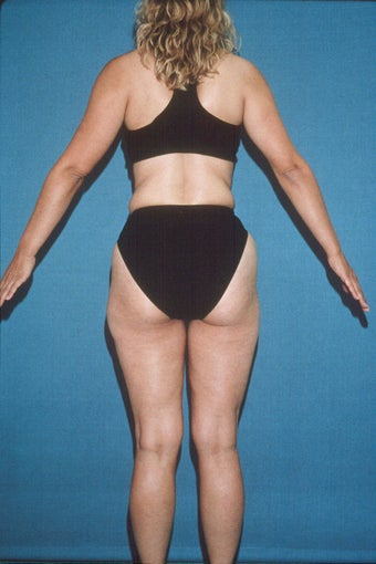 Total Body Liposculpture