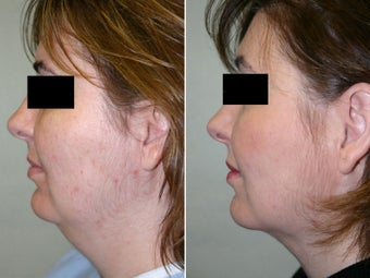 Submental and Neck Liposculpture