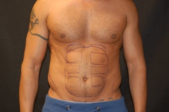 Liposculpting of the abdomen