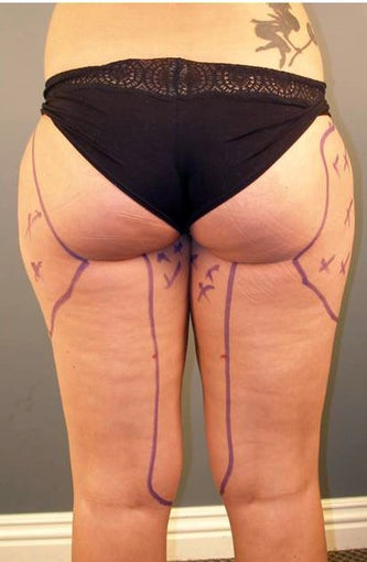 Tumescent Liposuction Under Local Anesthesia.
