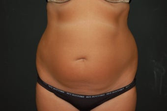 true tumescent liposuction