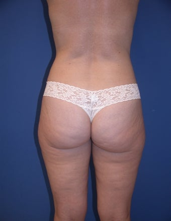 Before & After Liposculpture of the buttocks, thighs & hips