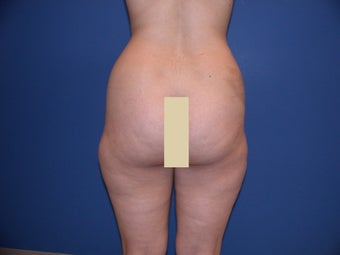 Liposculpture of Thighs and Hips