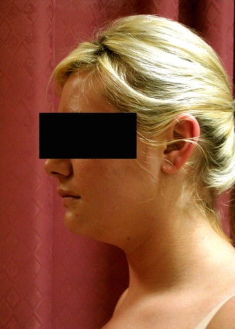 liposuction of neck & jaw line for women