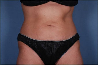 Liposonix to Abdomen
