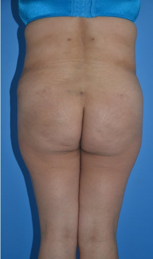 Liposuction and Abdominoplasty