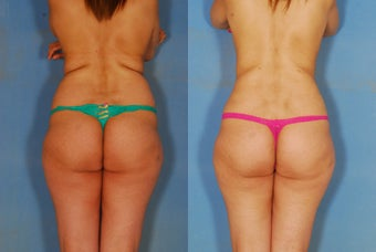 Liposuction of the Back and Flanks
