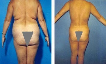 Liposuction of Back Rolls