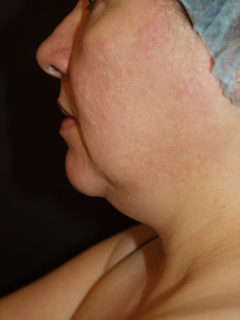 Liposuction Neck
