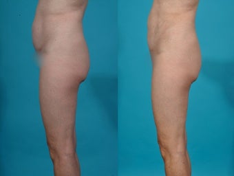 Liposuction; abdomen
