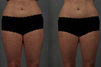 CoolSculpting of the Inner Thighs