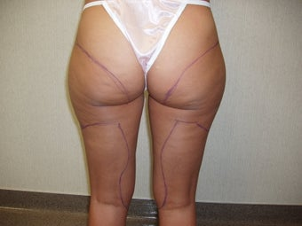 Liposuction Buttocks and Thighs