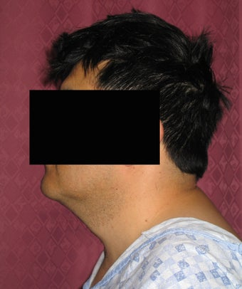 Liposuction of neck & jaw line for men