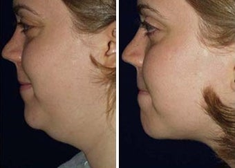 Liposuction of Chin
