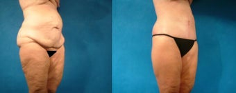 Lower Body Lift and Hernia Repair