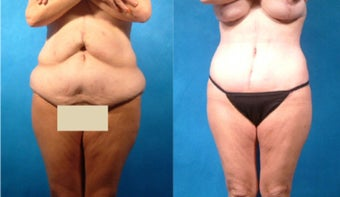 Lower Body Lift with Liposuction and Fat Transfer