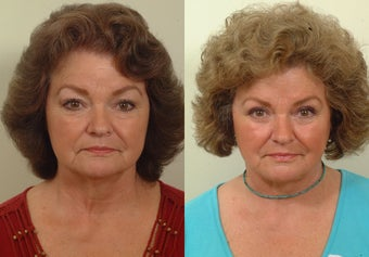 Lower facelift and eyelids