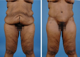 Lower Body Lift with Laser Liposuction to the Hips and Thighs