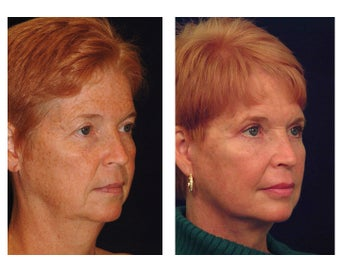 Lower Face & Neck Lift