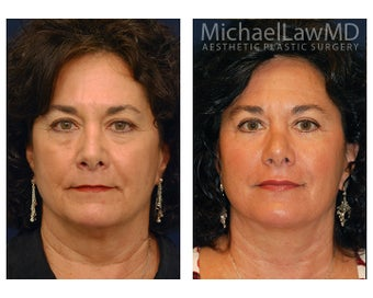 Facial Rejuvenation - Lower Face Lift