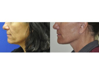 Lower Facelift/Neck LIft