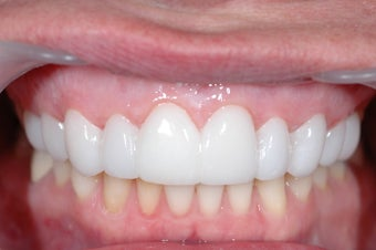 Combination Invisalign and Lumineers