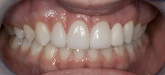 Porcelain Bridge and Veneers