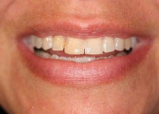 Smile makeover with Lumineers and Invisalign